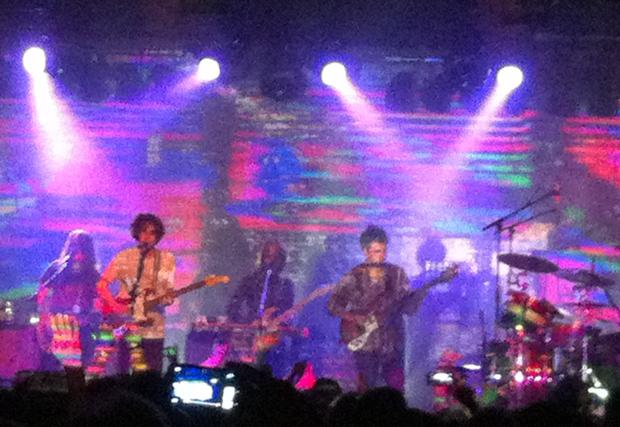 MGMT band